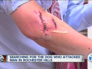 Searching_for_the_dog_who_attacked_man_i_2541900001_13055204_ver1.0_640_480