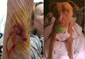 Kim Richards pit bull with injury.